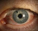 Глаукомоциклитический криз