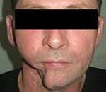 Дефекты нижней челюсти