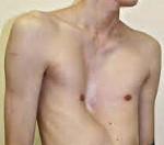 Деформации грудной клетки у детей