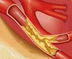 Ишемическая нефропатия