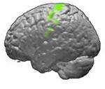 Кожевниковская эпилепсия
