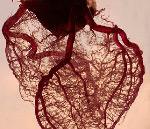 Коронарит — это воспалительное поражение стенок сосудов, питающих миокард. Развивается на фоне инфекционно-воспалительных заболеваний сердца, других органов и тканей, в том числе системного характера. Может осложняться аритмией, тромбоэмболией, инфарктом. Пациенты жалуются на одышку, тахикардию, давящие ощущения и боль за грудиной. Заболевание диагностируется с помощью физикального обследования, ЭКГ, Эхо-КГ, лабораторных анализов.