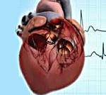 Хроническое легочное сердце стадии