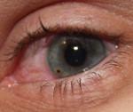 Металлоз глаза