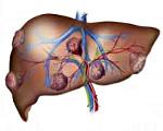 Метастатический рак печени