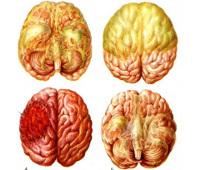 Нейроинфекции