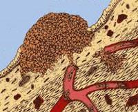 Нейроэндокринные опухоли