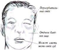 Нефротический синдром