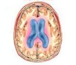 Окклюзионная гидроцефалия