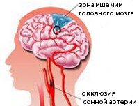 Окклюзия сонных артерий