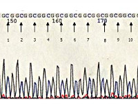 Окулофарингеальная мышечная дистрофия