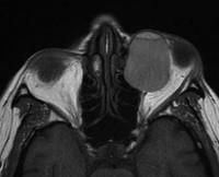 Окулоцереброкутанный синдром
