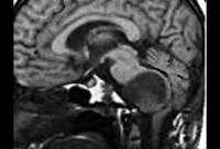 Опухоли ствола мозга
