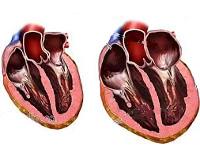 Острое расширение сердца