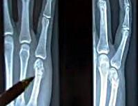 Перелом пястной кости