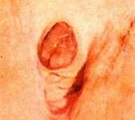 Выпадение слизистой уретры