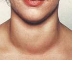 Йододефицитные заболевания щитовидной железы