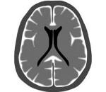 Карциноматозный менингит