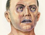 Метгемоглобинемия