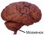 Наследственная мозжечковая атаксия Пьера-Мари