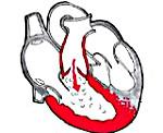 Недостаточность клапана легочной артерии