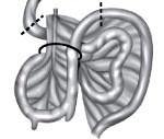 Незавершенный поворот кишечника