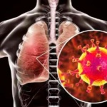 Болезнь короновирус COVID‑19