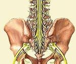 Опухоль конского хвоста