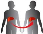 Осложнения трансплантации печени