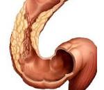 Острый сигмоидит