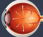 Офтальмогипертензия