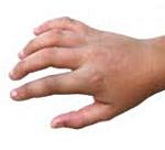 Переломы костей кисти и пальцев у детей