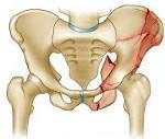 Перелом костей таза у беременных