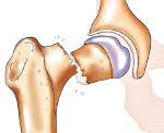 Перелом шейки бедра у пожилых (Перелом шейки бедренной кости у пожилых)