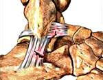 Повреждение связок