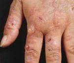 Поздняя кожная порфирия