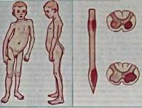 Полиомиелитоподобные заболевания