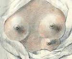 Пороки развития молочных желез