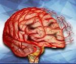 Постреанимационная энцефалопатия