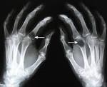 Почечная остеодистрофия