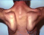 Прогрессирующая мышечная дистрофия Эрба-Рота