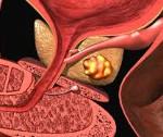 Простатическая интраэпителиальная неоплазия