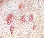 Псевдолимфомы кожи