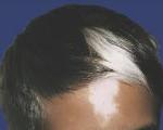 Пьебалдизм (Неполный альбинизм, Частичный альбинизм)