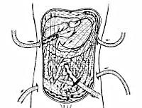 Разлитой перитонит