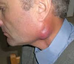 Рак слюнных желез