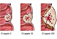 Рак толстой кишки (Колоректальный рак)