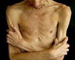 Раковая кахексия