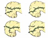 Расщепленная поджелудочная железа