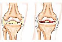 Реактивные артриты
